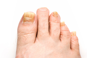 Toenail fungus treatment westland mi 48185 foot doctor dr toenail fungus is a frustrating and embarrassing condition that is common for many people it typically starts as a tiny white or yellow growth below the sciox Gallery